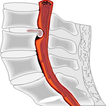 Ущемление протрузией спинномозгового канала