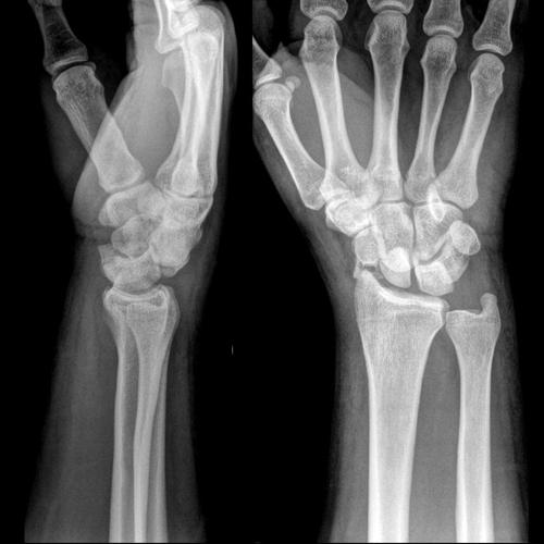 Вывих кисти на рентгенографии
