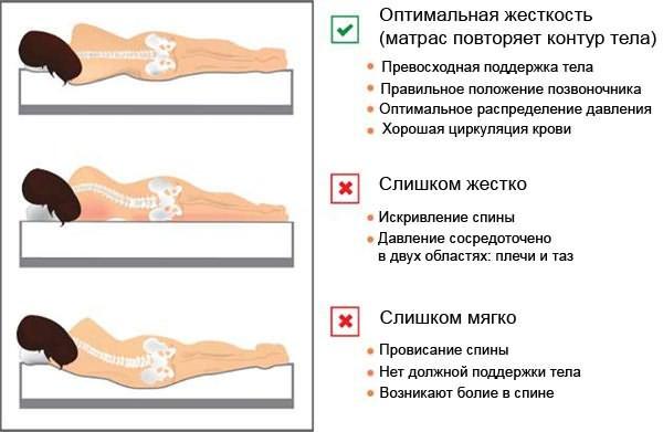 Выбор оптимального матраса при остеохондрозе