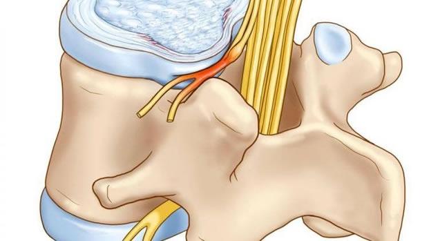 Часто заболевание развивается из-за компрессии (сдавления) корешков нервных узлов шеи