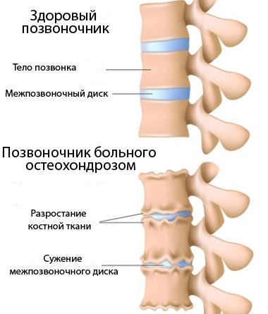 Здоровый и пораженный остеохондрозом позвоночник