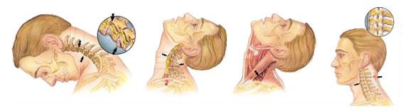 Хлыстовая травма возникает из-за резкого запрокидывания шеи