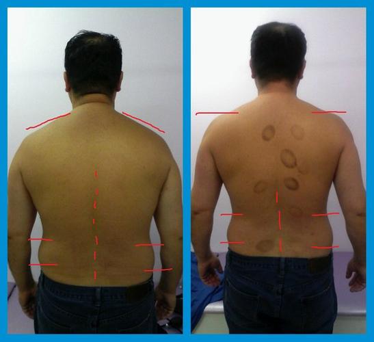 Результаты лечения ретролистеза и сколиоза позвоночника
