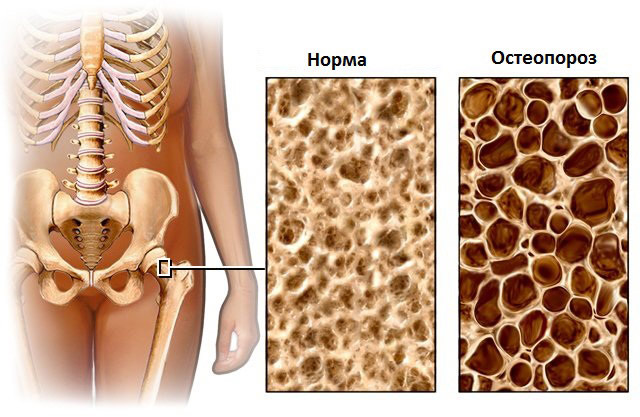 Нормальная и пораженная остеопорозом кость