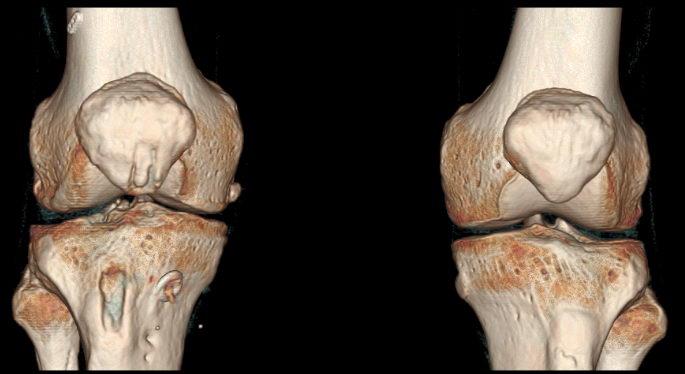 Снимок КТ коленных суставов