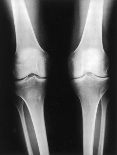 Артроз на второй стадии по данным визуализирующей диагностики (рентгенографии)