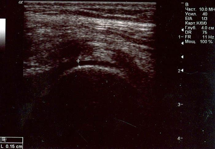 Визуализация колена на УЗИ