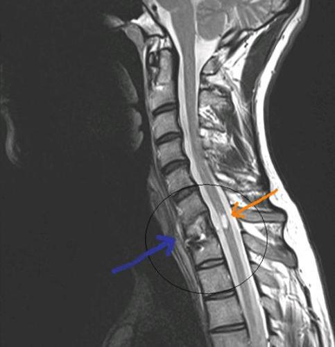 Остеохондроз позвоночника на рентгеновском снимке