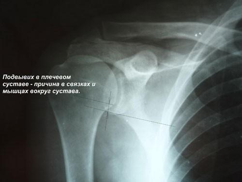 Подвывих в плечевом суставе на рентгене