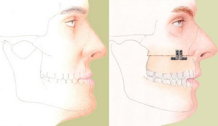 Остеотомия челюстных костей