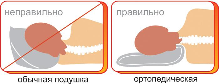 Отличия ортопедической подушки от обычной