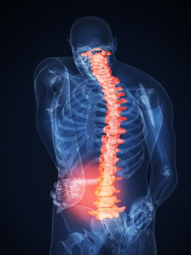 Пластырь Дорсапласт крайне эффективен при болях в спине