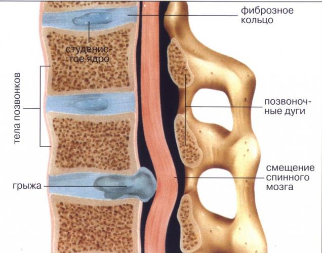 Анатомия позвоночного столба и позвонков
