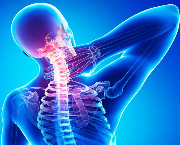 Локализация болей при шейном остеохондрозе