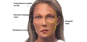 Симптомы и лечение защемления затылочного нерва