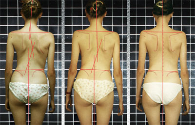 Асимметрия тела при сколиозе
