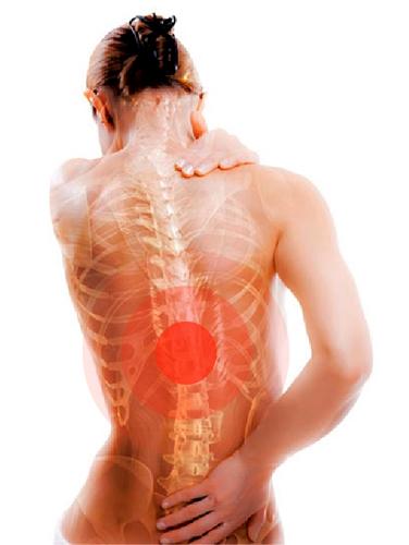 Локализация боли при остеопорозе спины