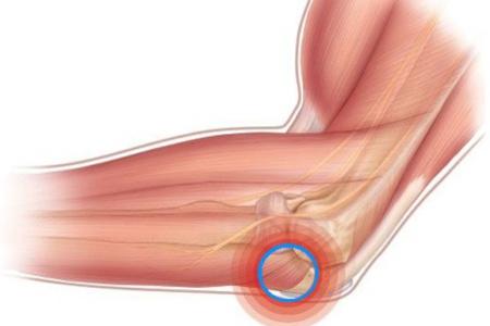 Локализация болей при артрите локтя