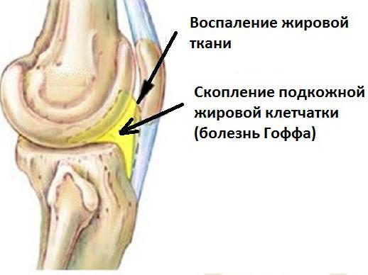 Воспаление жировой ткани и скопление подкожной клетчатки при болезни Гоффа
