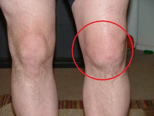 Пирофосфатная артропатия коленного сустава (втораястадия)