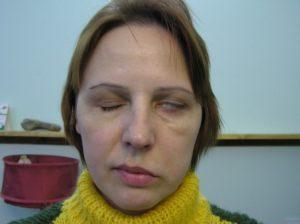 Как и чем лечить парез лицевого нерва