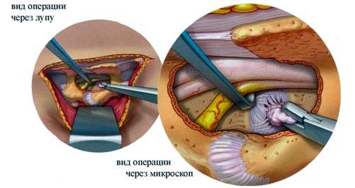 Микрохирургическое лечение секвестированной грыжи