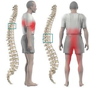 Боли при грудном хондрозе могут отдавать в нижние конечности и промежность