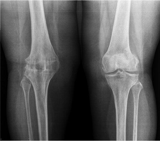 Разрушение сустава на четвертой стадии артроза по данным рентгенографии