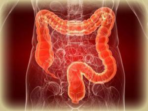 Прогноз от врачей будет при раке кишечника 4 стадии с метастазами
