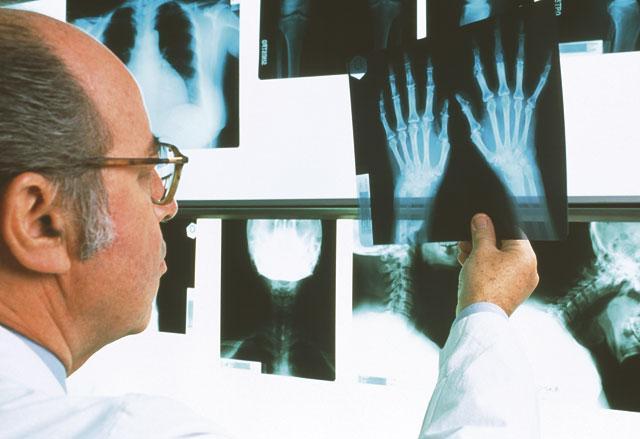 Чтобы получить группу инвалидности при артрите следует пройти обследование