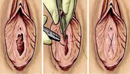 Гименопластика операция для женщин, чтобы спасти свою жизнь и брак