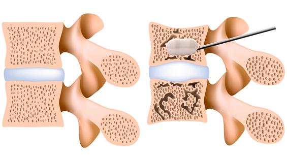 Введение пункционной иглы при вертебропластики