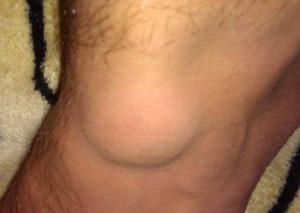 Как лечится гигрома коленного сустава