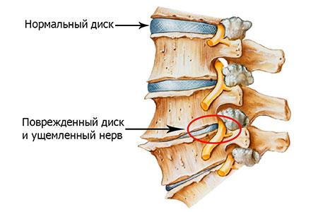 Повреждения спины часто возникают на фоне грыж дисков позвонков
