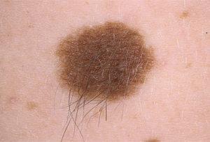 лечение пигментного невуса кожи