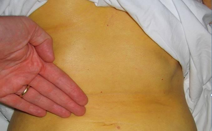 Больной гепатитом