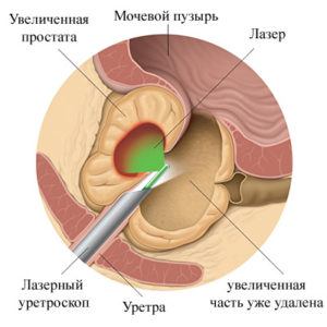 аденомы простаты через мочеиспускательный канал