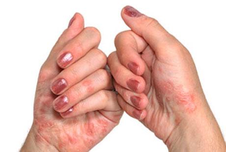 Псориатический артрит обычно начинается с изменения структуры ногтей пальцев рук