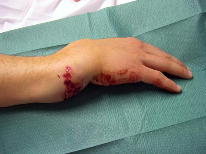 Тяжелый вывих кисти с переломом