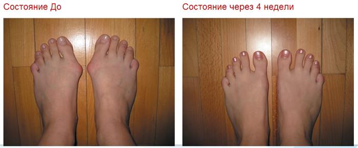 Результаты лечения пластырем Hyperosteogeny