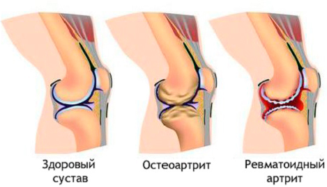 Здоровый и пораженный артритом сустав