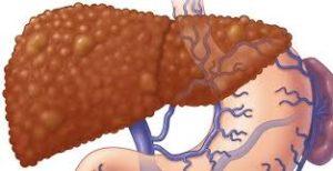 лечение гепатоцеллюлярной карциномы