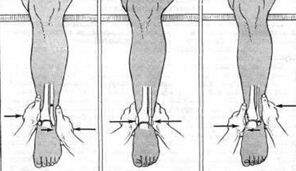 Вправление голеностопа