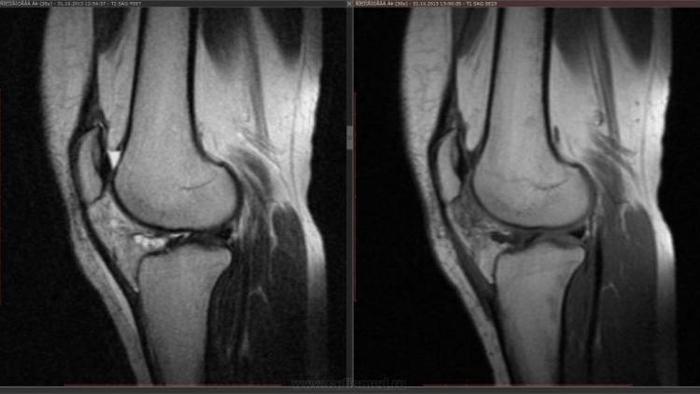 Болезнь Гоффа на снимке МРТ