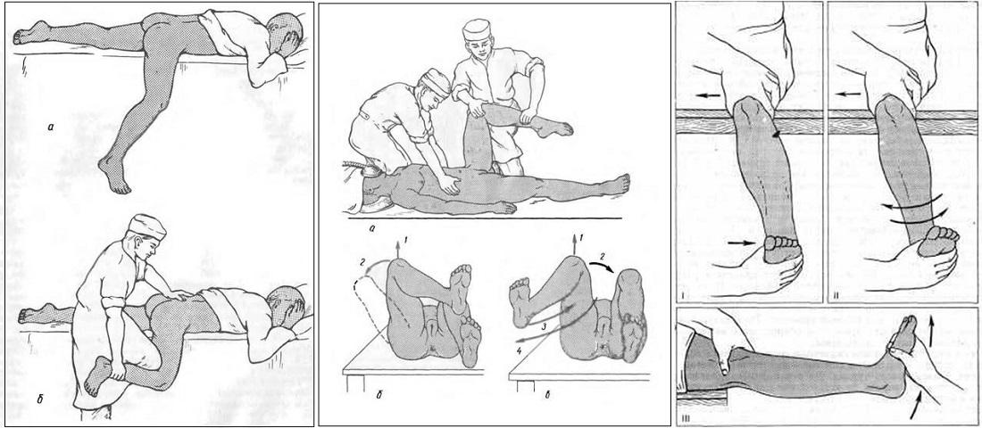 Методы вправления вывихнутого колена