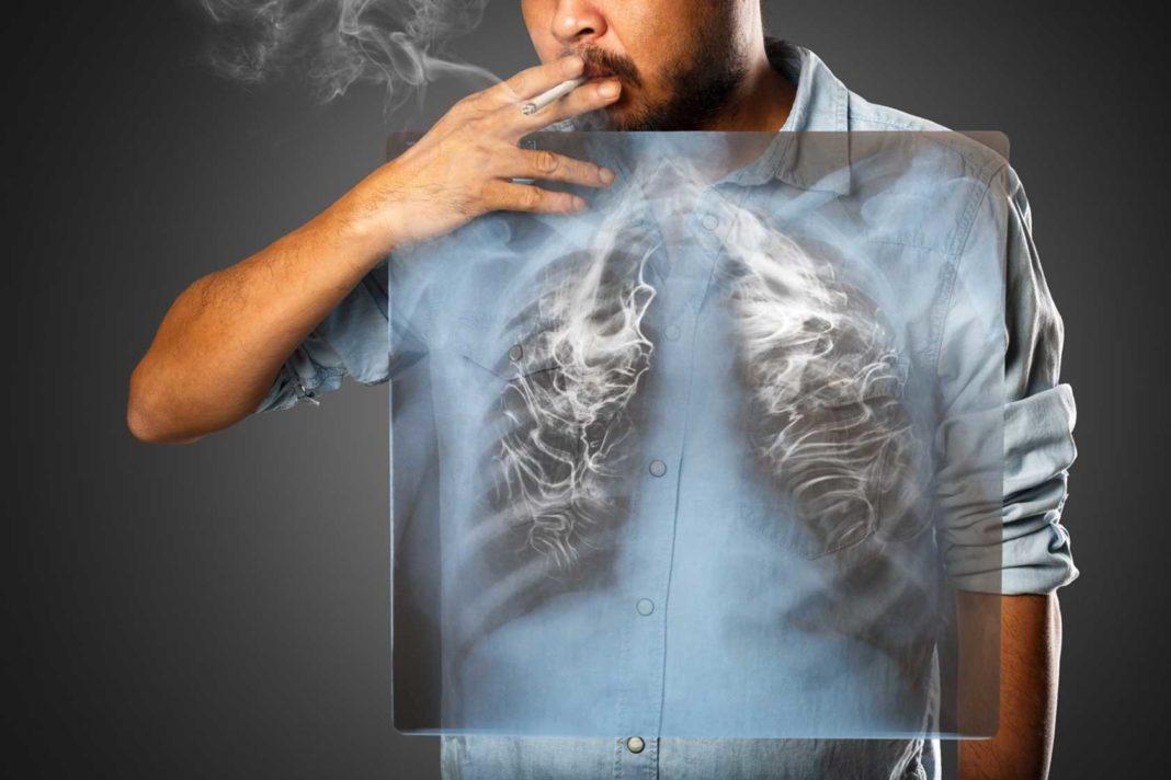 Как очистить легкие курильщика от смол и никотина народными средствами?