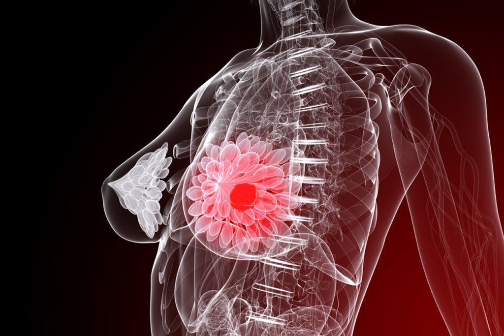 Схема лактостаза в груди