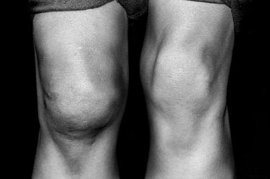 Пораженный остеопороз коленный сустав