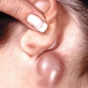 Последствия и лечение опухоли за ухом