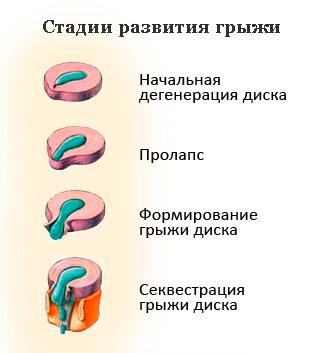 Стадии развития межпозвоночных грыж
